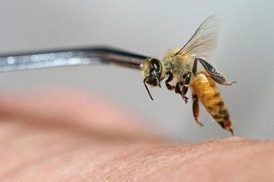 Bee Venom Therapy