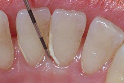 Systemic diseases from gum disease