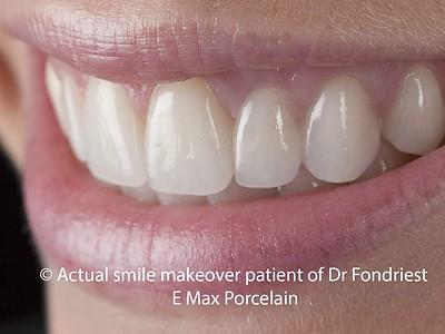 Picture of dental bridge