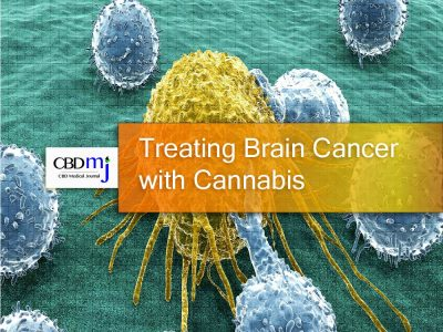 Treating Brain Cancer with Cannabis