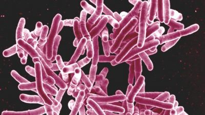 Image: Microscopic image of M. tuberculosis: a deadly pathogen