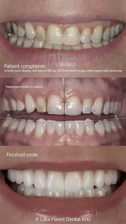 Gummy smile before and after