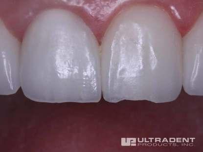 1_Before-Porcelain-Veneer-Repair-Clinical
