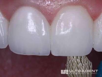 2_After-Porcelain-Veneer-Repair-Clinical