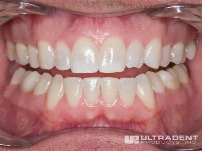 Opalescence-Boost-Procedure_Step-10