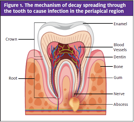 Odontogenic Infection; Tooth Region Labeled, Abscess