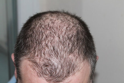 Stop Hair Loss Due To Creatine