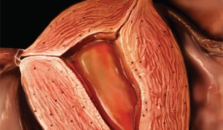 Assessing Abnormal Uterine Bleeding in the Urgent Care Center
