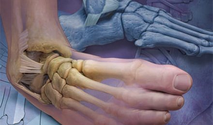 Acute Ankle Injuries in the Urgent Care Setting