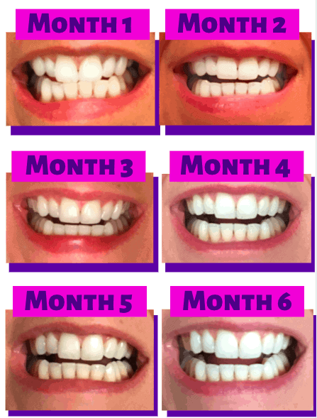 pictures of teeth progress for Smile Direct Club