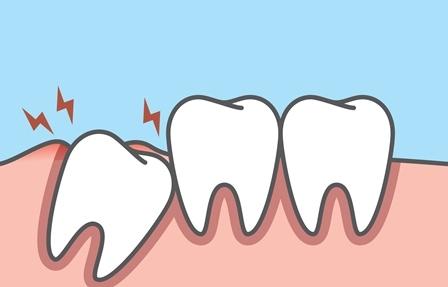 Les dents de sagesse - Dentiste Paris 16 Richard Amouyal