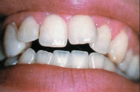 Traitement diastème facette dentaire dentiste richard amouyal paris 16