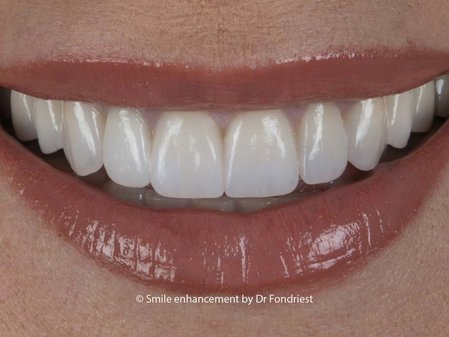 Not all Cosmetic dentistry is the same.