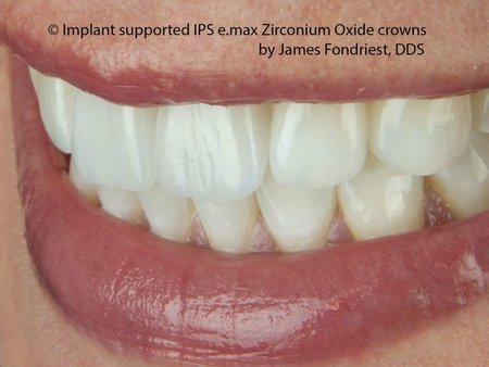 Strongest Implant crowns