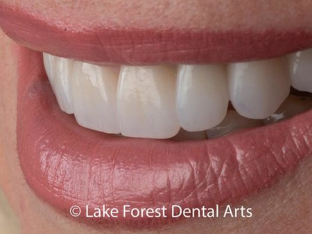 smile makeover done with teeth crowns