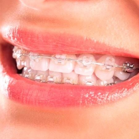 ortodoncia estetica de zafiro