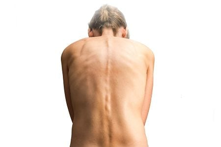 Die Rückenmuskulatur versucht die Wirbelsäulenverkrümmung bei einer Skoliose auszugleichen. Somit entsteht eine Überlastung was zu Verhärtungen führen kann.