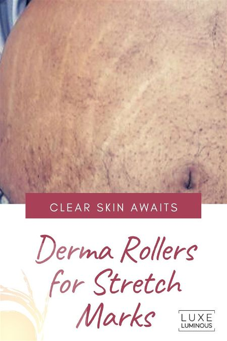 Derma Roller for Stretch Marks