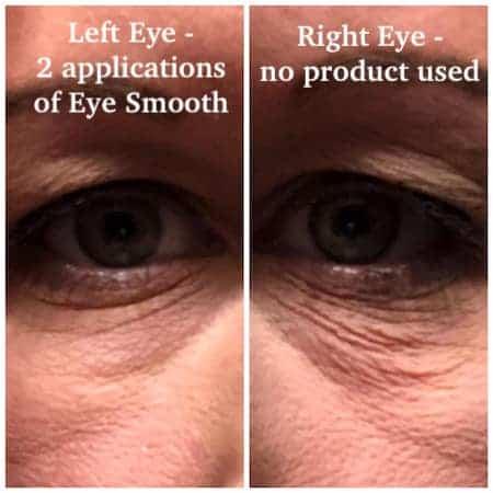 eyes comparison photo