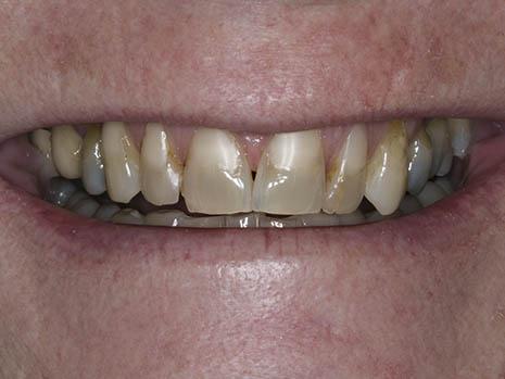 Teeth that don't bleach