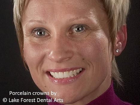 advantages of porcelain crowns