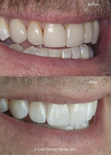 tooth veneers before and after