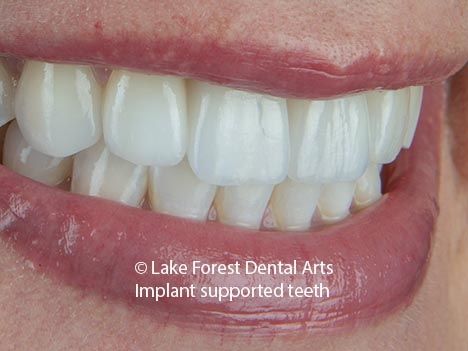 tooth replacement with a dental implant