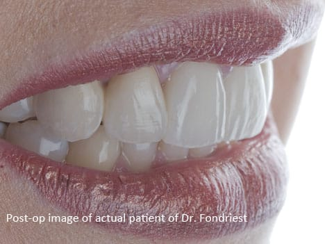 Dental bridges - dental bridgework