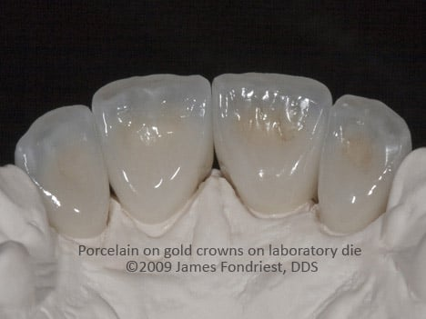 PFM crowns