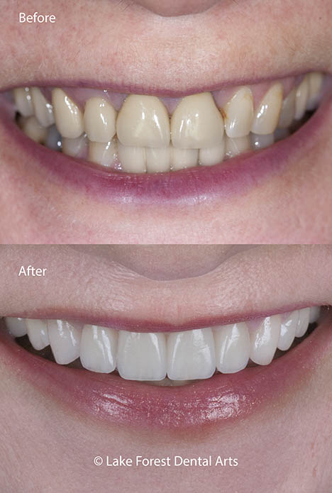 Front tooth crowns before and after