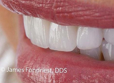 Single Tooth Implants