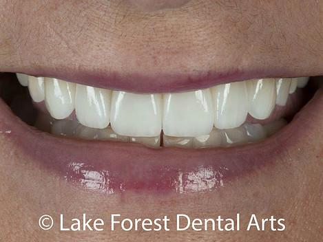 ceramic veneers to restore your smile