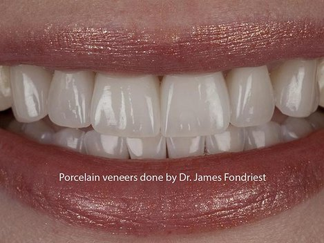 porcelain veneers for chipped teeth