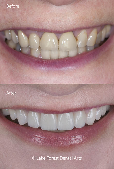 Change your tooth shapes