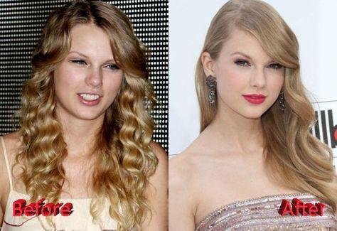 celeb plasticsurgery 2972223ed1bea9f1ccbd6d07b00e4b43 20201203 Taylor Swift Before and After plastic surgery November 9, 2020