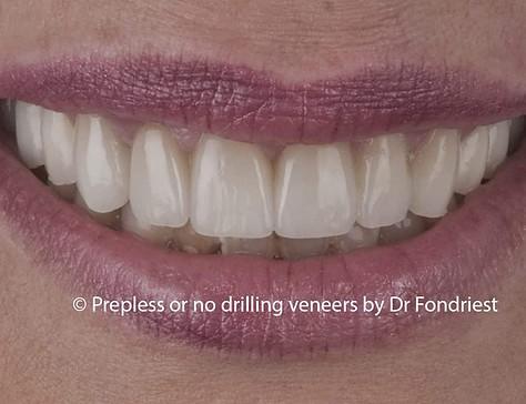 Advantages of No-prep Veneers