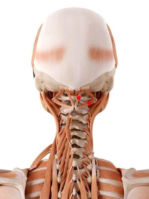 Triggerpunkte an den kurzen Nackenmuskeln schränken die Beweglichkeit des Kopfes, Kopfschmerzen, Schwindelgefühl.