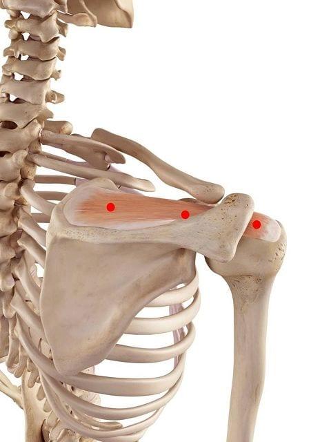 Triggerpunkte im Obergrätenmuskel können neben tiefen bohrenden Schmerzen in den Schultern auch Übertragungsschmerz in den Armen und Bewegungsschmerz bei Überkopfarbeiten führen.