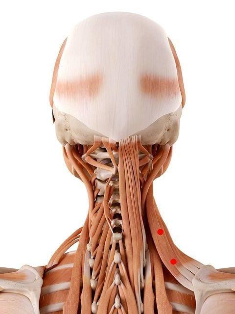 Triggerpunkte im Schulterblattheber (lat. levator scapulae) können Nackenschmerzen und einen Schiefhals (Torticollis) auslösen. Darüber hinaus kann es zu Bewegungsschmerzen in den Schultern kommen.