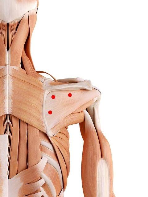 Triggerpunkte im Untergrätenmuskel verursachen heftige Schmerzen in der Schulter sowie eine Schmerzausstrahlung in den Arm. Darüber hinaus können Empfindungssörungen in der Hand auslösen.