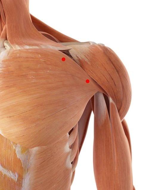 Triggerpunkte im großen Brustmuskel können zu ausstrahlenden Schmerzen im vorderen Schulterbereich führen.