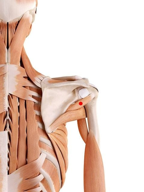 Triggerpunkte im kleinen Rundmuskel verursachen Schmerzen im hinteren Schulterbereich sowie im Oberarm.