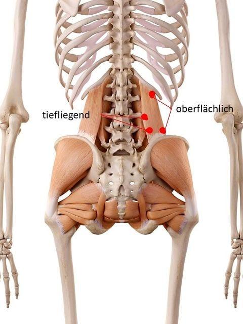 Triggerpunkte verursachen Kreuzschmerzen, Rückenschmerzen bei langem Stehen, Hust- und Niesschemrzen und Schmerzen beim aufstehen am Morgen.