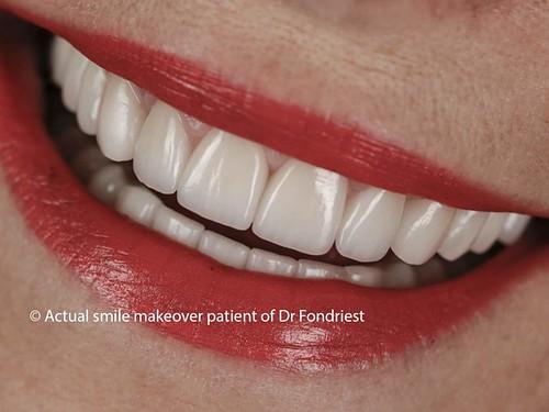 Common Dental Implant Mistakes