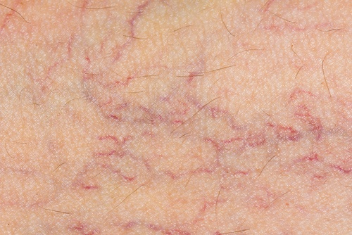 Treat Varicose Veins Naturally During Pregnancy