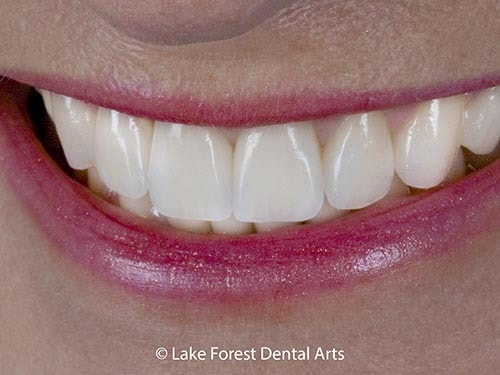 best cosmetic dentist Chicago