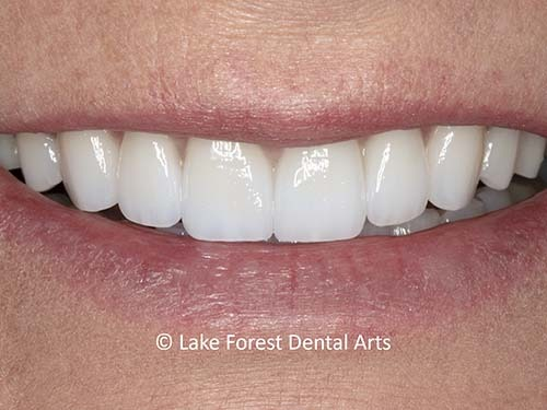 Very thin veneers