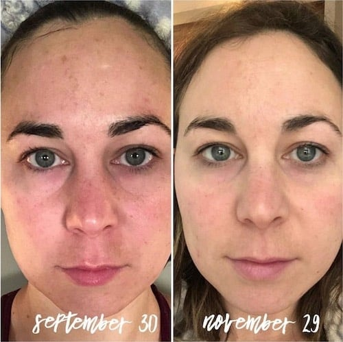 Monat skincare before and after transformation photo