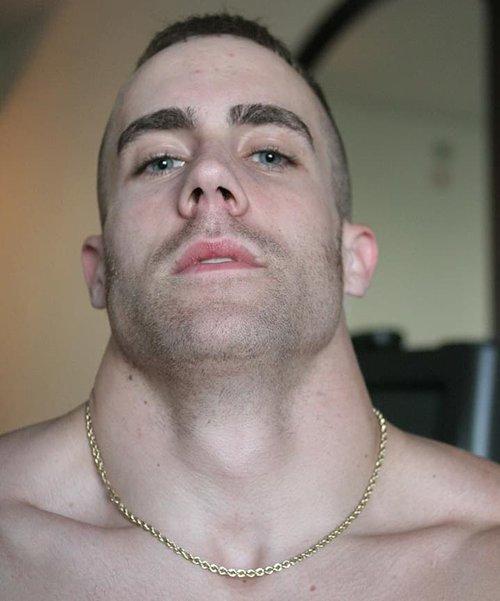 Muscular neck