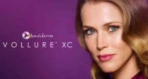 Juvederm Vollure XC Fillers. Available in Rancho Cucamonga at Gemini Plastic Surgery